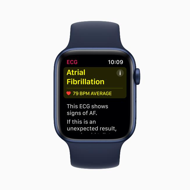 Sinus rhythm classification displayed in the ECG app on Apple Watch Series 6.