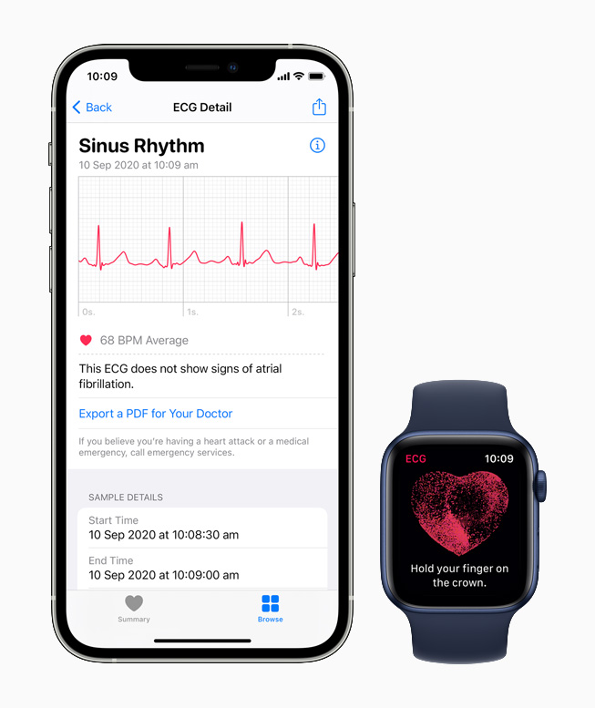 The ECG app displaying the sinus rhythm classification on Apple Watch Series 6.