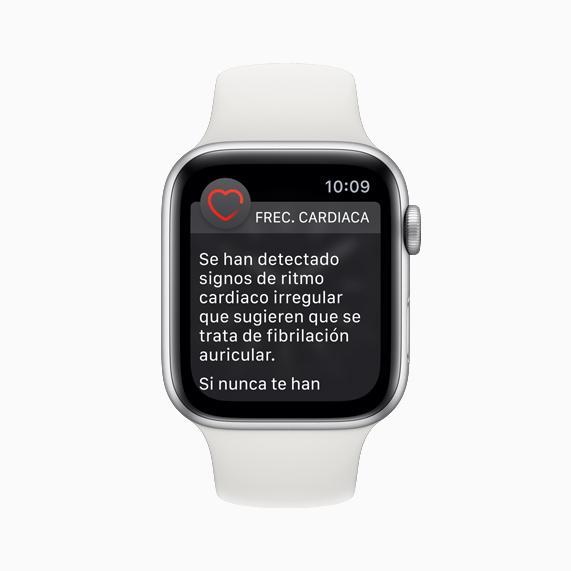 Esfera del Apple Watch con una notificación de ritmo cardiaco irregular.