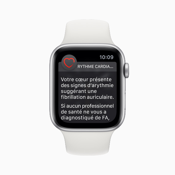 Cadran d'Apple Watch avec la notification d'arythmie.