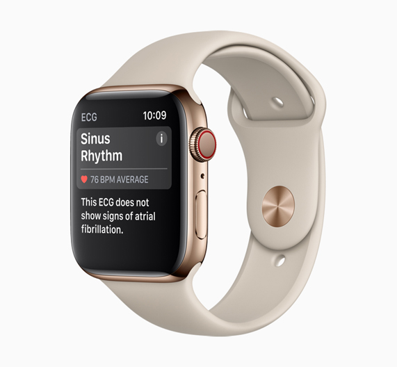 Apple Watch Series 4 showing sinus rhythm.