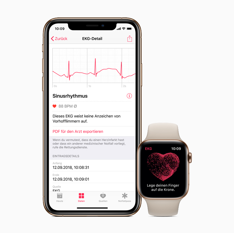 iPhone and Apple Watch showing ECG app.