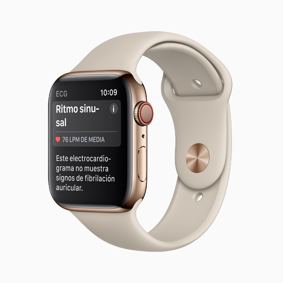 Apple Watch showing sinus rhythm.