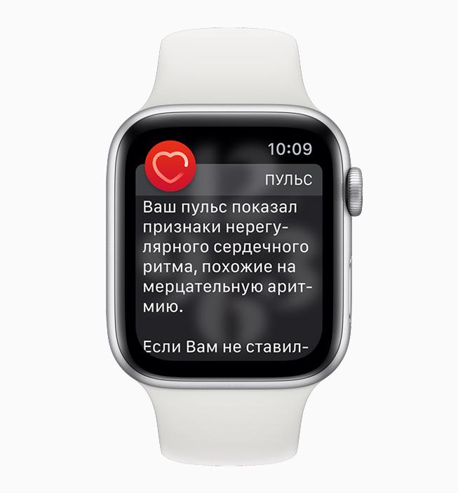 Экран с уведомлением о сердечном ритме на Apple Watch.