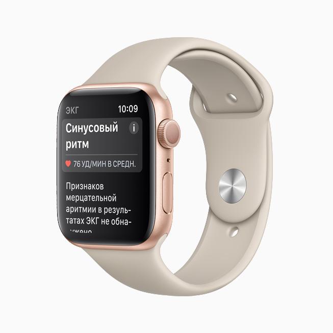 На дисплее Apple Watch отображается уведомление о синусовых ритмах.