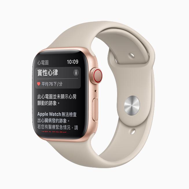顯示在 Apple Watch 上「心電圖」app 中的竇性心律分類。
