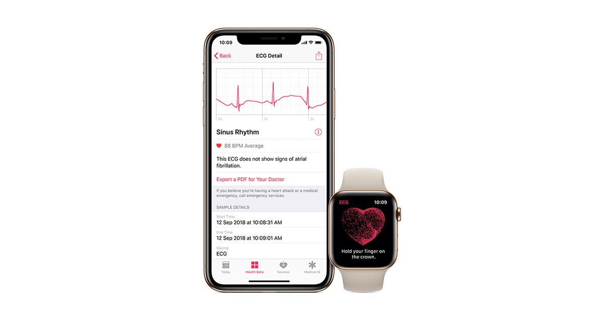 Ecg app on apple watch 4 uk